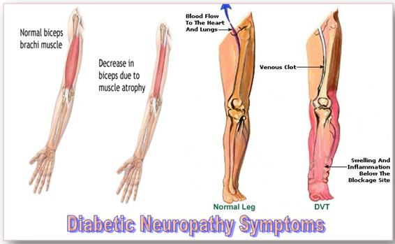 Nutrinerve All Natural Neuropathy Relief Treatment